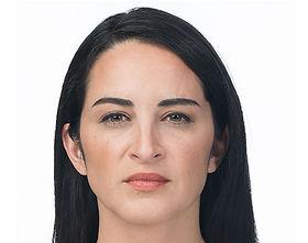 Botox after.jpg