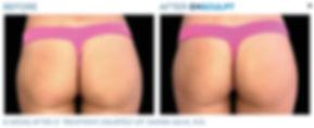 Emsculpt butt 14.jpg