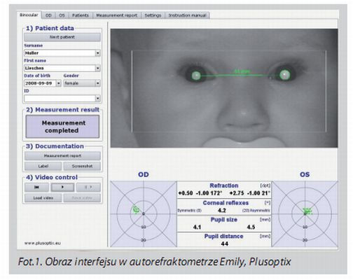 Reporte examen visual en bebé con PlusOptiX
