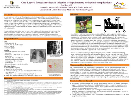 Case Report: Brucella melitensis infection with pulmonary and spinal complications