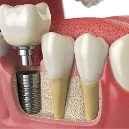 Dental Implants | DentoCareMed