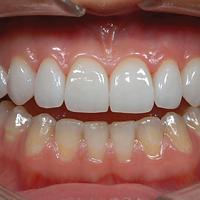 Excellent Treatment | DentoCareMed
