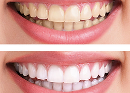Laser Teeth Whitening | DentoCareMed
