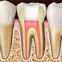 Root Canal Treatment | DentoCareMed