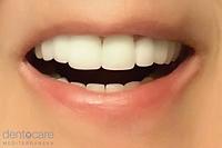 Superb Treatment | DentoCareMed