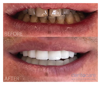 Before and After | DentoCareMed