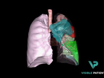 Réduction du risque médical : présentation du nouvel outil d'analyse 3D Visible Patient