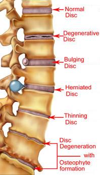 herniated-lumbar-disk.jpg