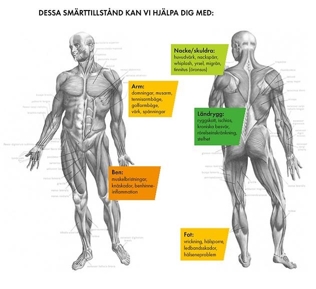 Naprapat_smärtkarta.png