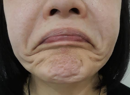 Treatment in Focus:  Lower Face Anti-Wrinkle Injections