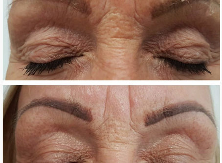 Rejuvenate Ageing Eye Area with new PLASMAGE Treatment (in Melbourne) Introductory Offer.