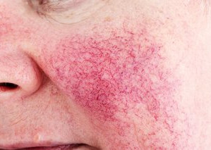 What is Rosacea and is it treatable?