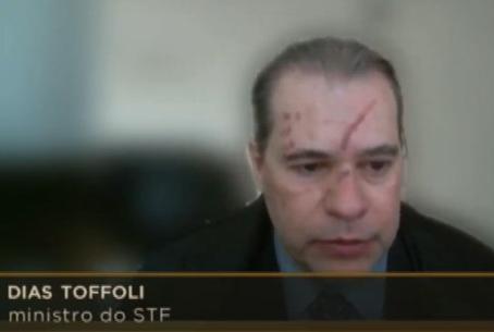 Ministro Dias Toffoli aparece cicatrizes no rosto em sessão do STF