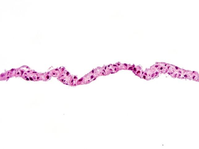 Cell Sheet Cross-section (H&E)
