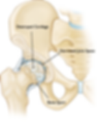 Detstroyed Hip | Melbourne Orthopaedic & Trauma Institute