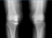 Robotic Knee Replacement | Melbourne Orthopaedic & Traumatic Institute