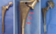Hip Implant | Dr. Siva Chandrasekaran