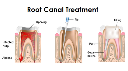 root canal treatment and filling
