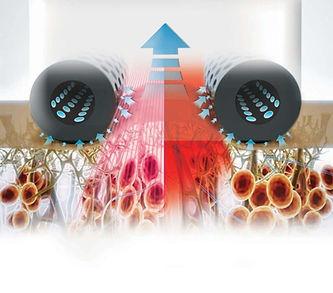Icoone Laser Bodyforming Frankenthal