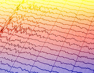 EEG wave in human brain,Abnormal EEG,Bra