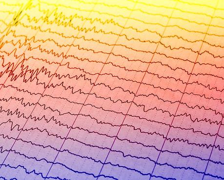 EEG wave in human brain,Abnormal EEG,Bra
