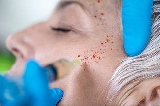PRP Face Cosmetics Injecting. Beautiful