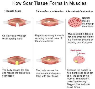 scar-tissue-forms.jpg