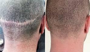 Camuflaje de cicatrices en cuero cabelludo