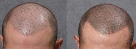 Micropigmentación en cabeza con alopecia