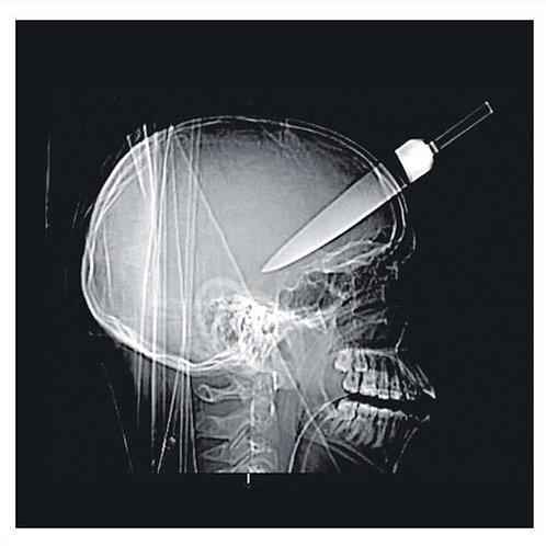 Alan Vega 70th - ep#4 - Lydia Lunch / Suicide – Frankie Teardrop