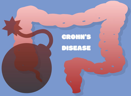 Coping with a Crohn's Diagnosis