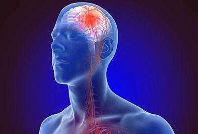 stroke-symptoms-and-treatment.jpg