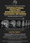 Fetal MRI: Ganglionic Eminences and Beyond