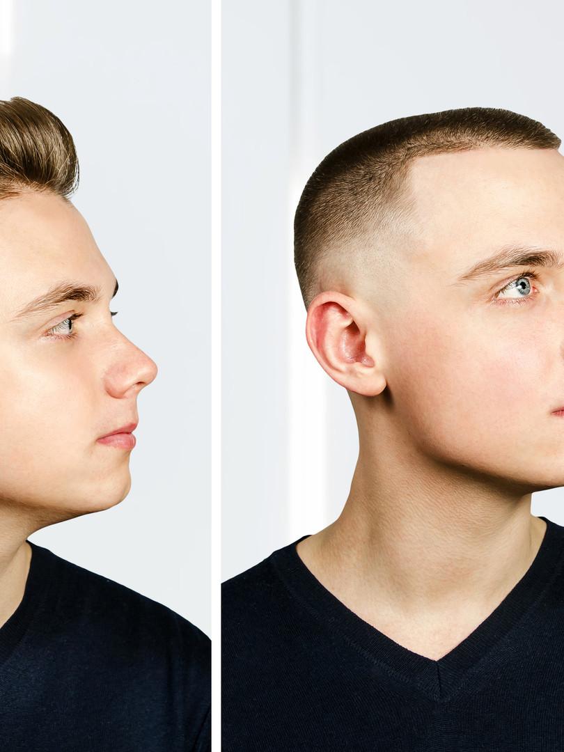 man before arter haircut with hair loss: