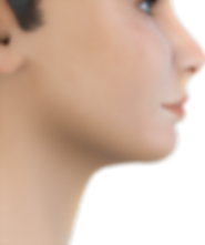 Class I soft tissue profile