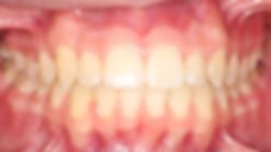 Case 4 - dental photograph of a narrow maxilla after orthodontic treatment