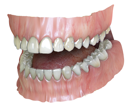 3D rendered image of Invisalign aligner treatment at .Ortho