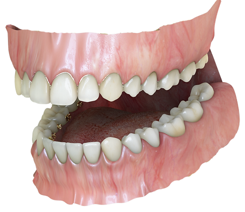 3D rendered image of invisible lingual hidden braces treatment at .Ortho