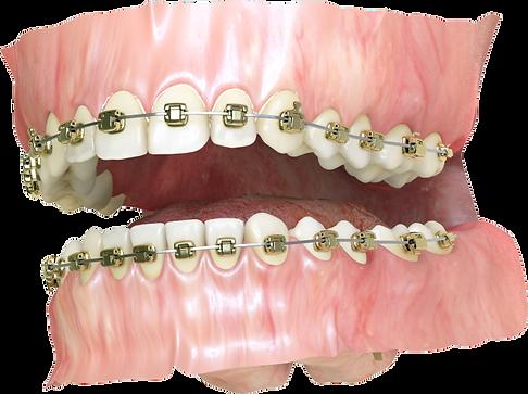 3D rendered image of golden orthodontic braces