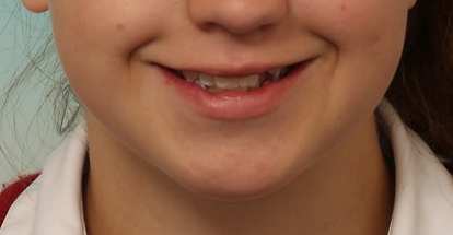 Case 1 - smile before orthodontic treatment