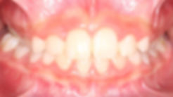 Case 3 - dental photograph after orthodontic correction of an impacted central incisor