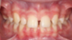 Case 2 - dental photograph of a case with missing tooth before orthodontic treatment