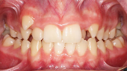 Case 4 - dental photograph of a narrow maxilla before orthodontic treatment