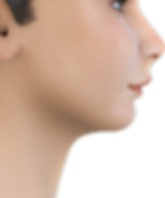 Class II soft tissue profile