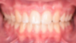 Case 2 - dental photograph of a case with missing tooth after orthodontic treatment