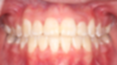 Case 1 - dental photograph of a crowded orthodontic case after orthodontic treatment