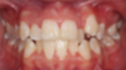 Case 1 - dental photograph of a crowded orthodontic case before orthodontic treatment