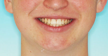 Case 4 - smile after orthodontic treatment