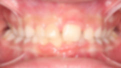 Case 3 - dental photograph of a case with an impacted central incisor tooth