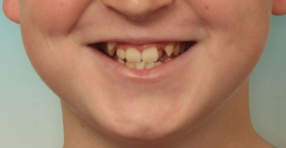 Case 4 - smile before orthodontic treatment